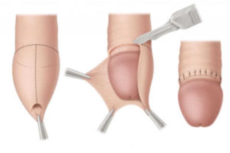 Обрезание крайней плоти полового члена