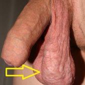 мошонка асимметрия варикоцеле