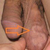 асимметрия мошонки вены
