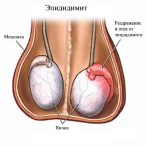 Боль придатка левого яичка у мужчин Эпидидимит