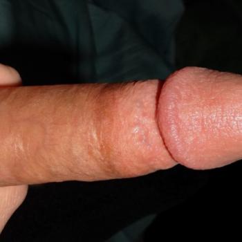 Фото полового члена с маленькой головкой