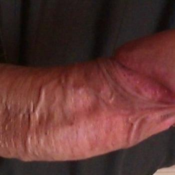 Фото после увеличения головки гиалуроновой кислотой