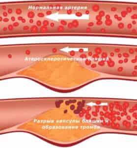 Атеросклероз сосудов полового члена фото