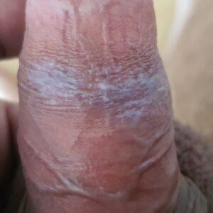 белое пятно на крайней плоти