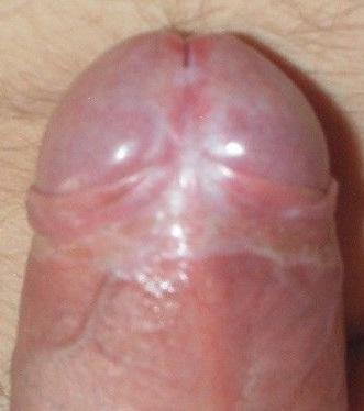 Фото белых пятен на уздечке полового члена