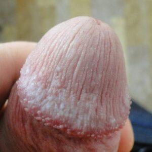 белые рубцы на головке члена